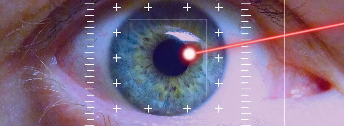 Miopia cirugia recuperacion laser
